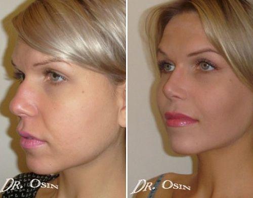 Толстый нос после ринопластики