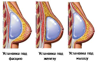 грудные импланты через 10 лет фото