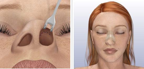 Как сломать нос чтобы от стал с горбинкой