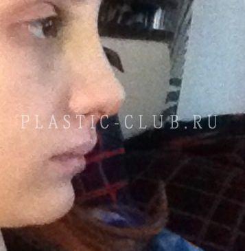Елена крыгина пластика носа