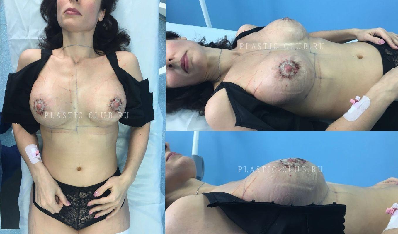 Крем для увеличения груди противопоказания