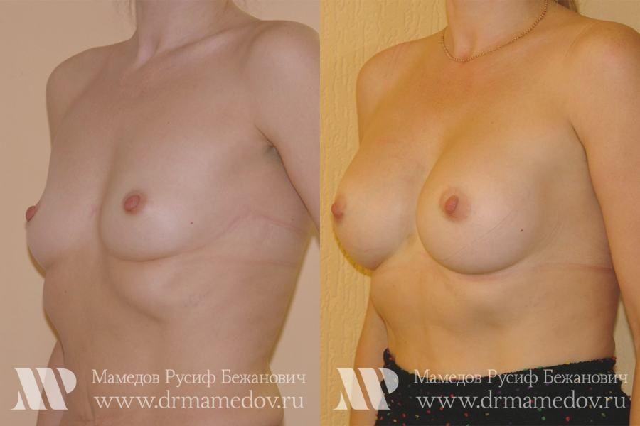 Отзывы о японской методике по увеличению груди