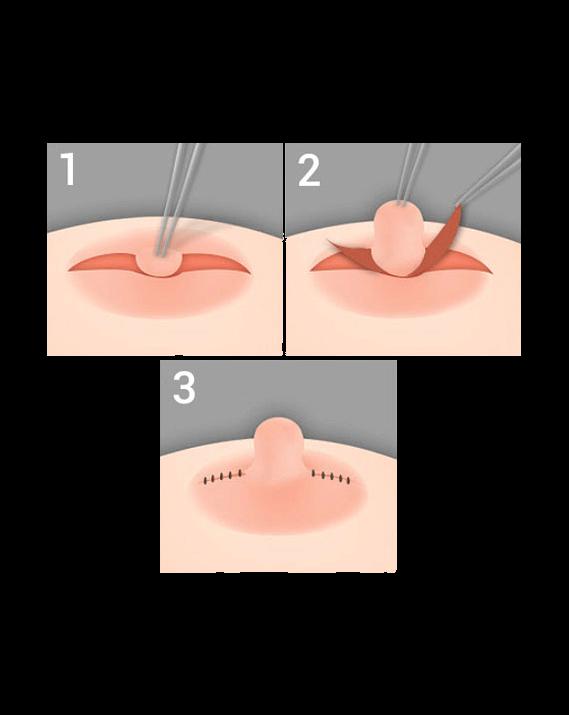 Подтяжка грудных желез без имплантов цена в саратове