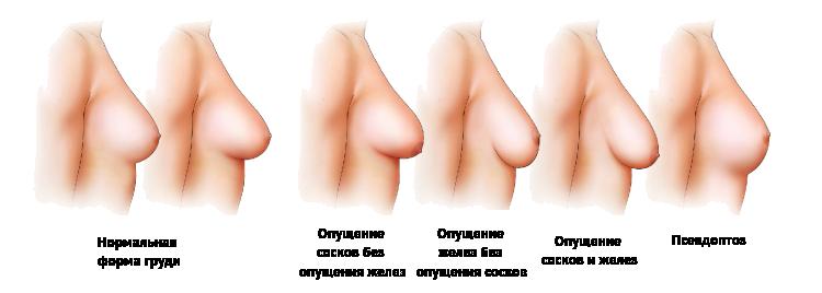 разновидности титек сосков