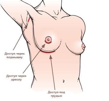 Стоимость силиконового имплантанта для груди