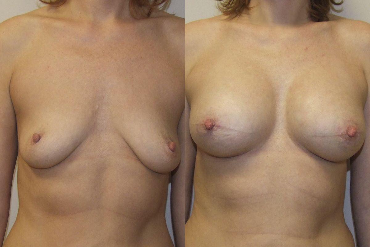 инъекционное увеличение груди
