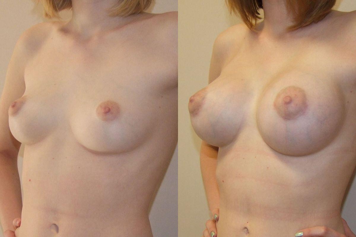 Операция по увеличению груди в кирове
