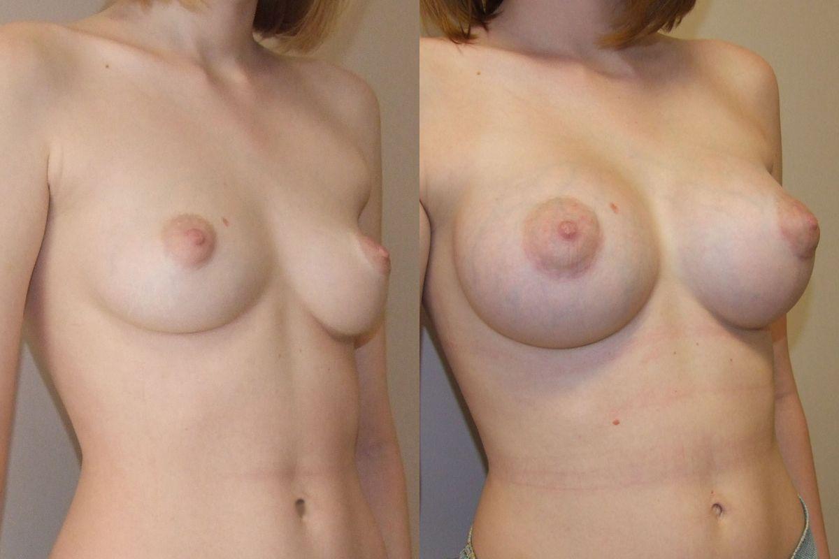 Реальные упражнения для увеличения груди