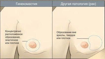 uvelichenie-grudnih-zhelez-u-transvestitov