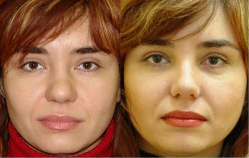 Ринопластика носа хирурги москвы