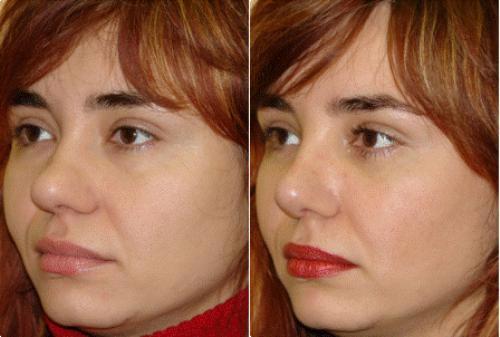 Ринопластика длинный нос до после