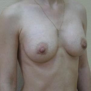 Крем для груди рецепты красоты